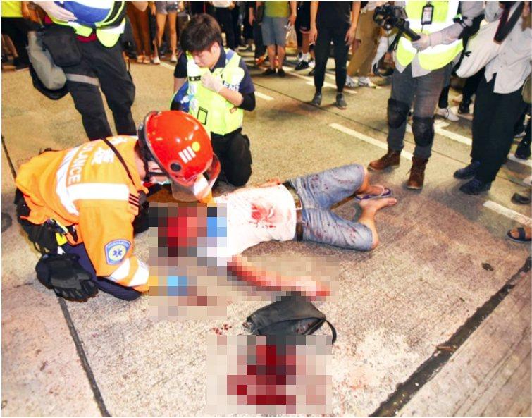 香港醫管局表示,截至上午7時半,昨日多場示威中,共有15人受傷送醫院,其中1人傷...