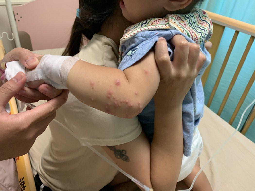 腸病毒原本僅好發於患者手足間的水泡疹子,也出現在手、腳關節處,醫護人員提醒,一定...