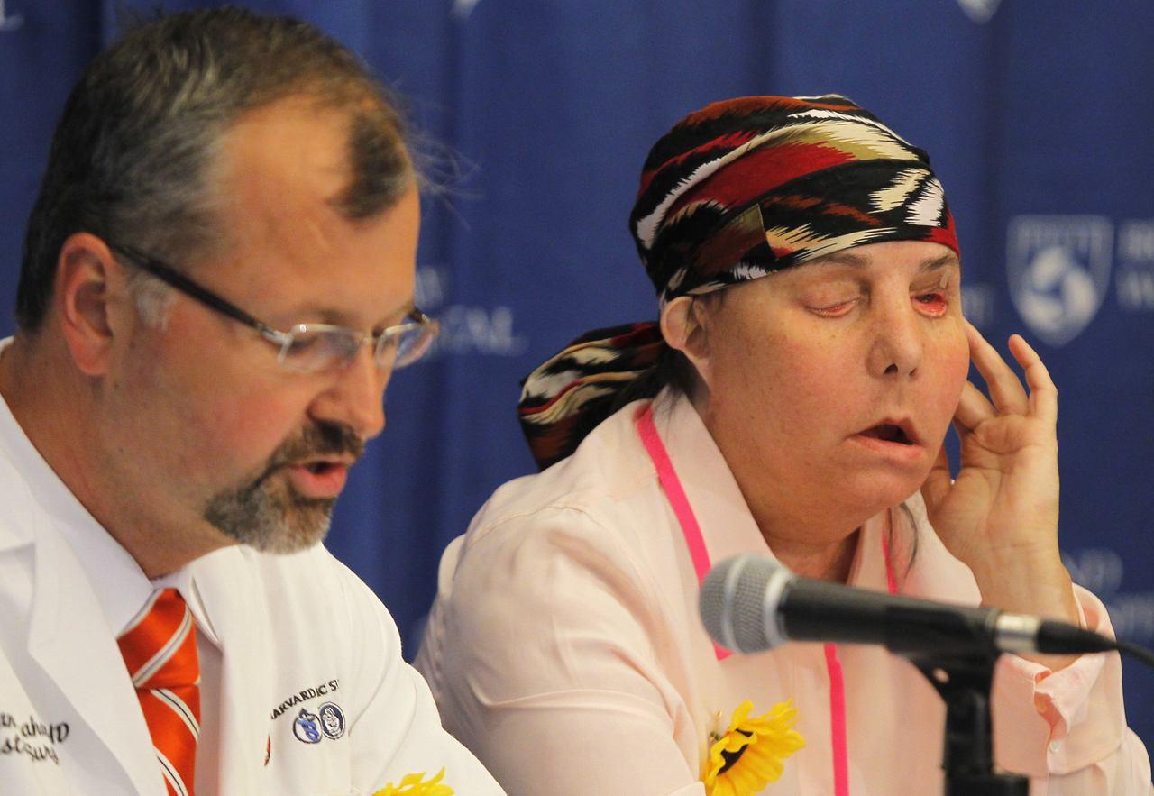 2013年因家暴嚴重燒傷的塔爾頓(右)接受臉部移植手術後,和醫生波馬哈奇一起受訪...