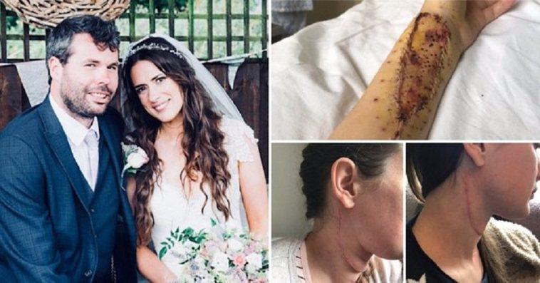 英國一名女子訂婚不久後發現罹患舌癌,不過醫生使用女子一部分的手臂肌肉,為她重建舌...