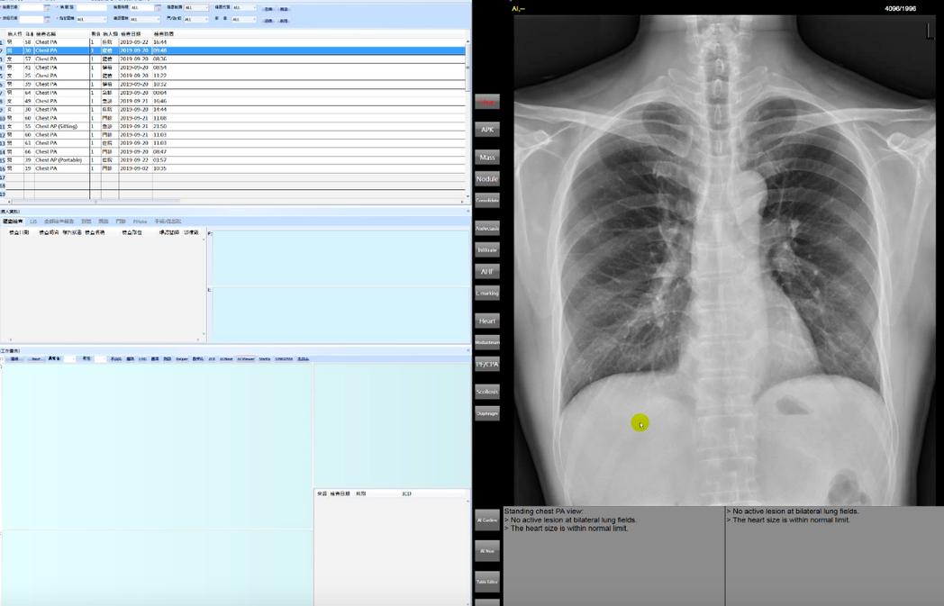 亞東廣達胸部X光AI系統(CXR AI)已進入臨床實測,系統可針對肺部結節、肺炎...