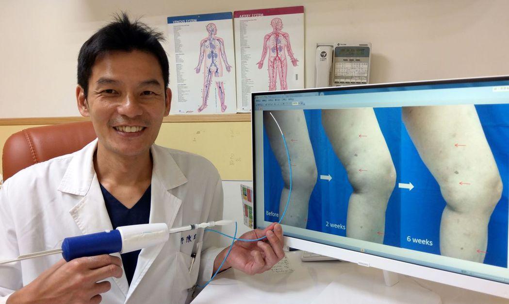 醫師陳建彰說明,54歲婦人原本嚴重靜脈曲張(左),經接受萬能膠手術,六周後,大腿...