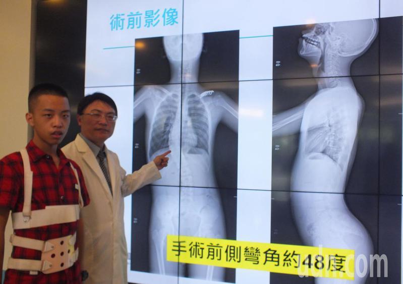 13歲鄭姓國中男學生(左)經接受機械手臂手術後,脊椎側彎矯正至17度,背也不痛,右為醫師李政鴻。記者趙容萱/攝影