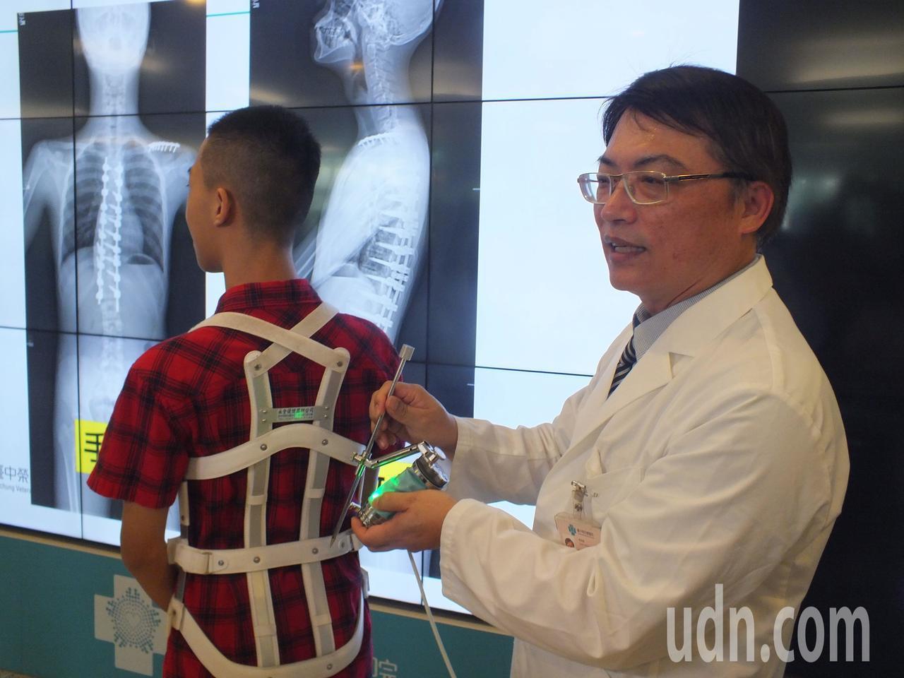 13歲鄭姓國中男學生(左)經接受機械手臂手術後,脊椎側彎矯正至17度,背也不痛,...