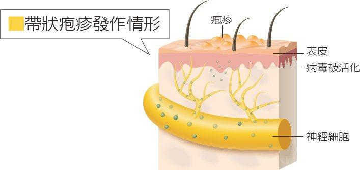 水痘病毒潛伏在神經根細胞,免疫力差時,就可能引起帶狀疱疹。 本報資料照片