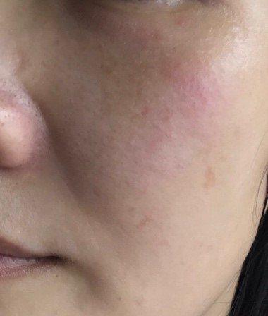使用天然海綿清潔之後,雙頰出現紅腫癢疹。