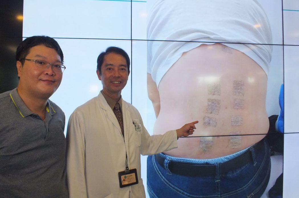 醫師潘建州(右)說明,吳姓患者(左)經接受機械手臂手術,精準置入骨釘,8個約1公...