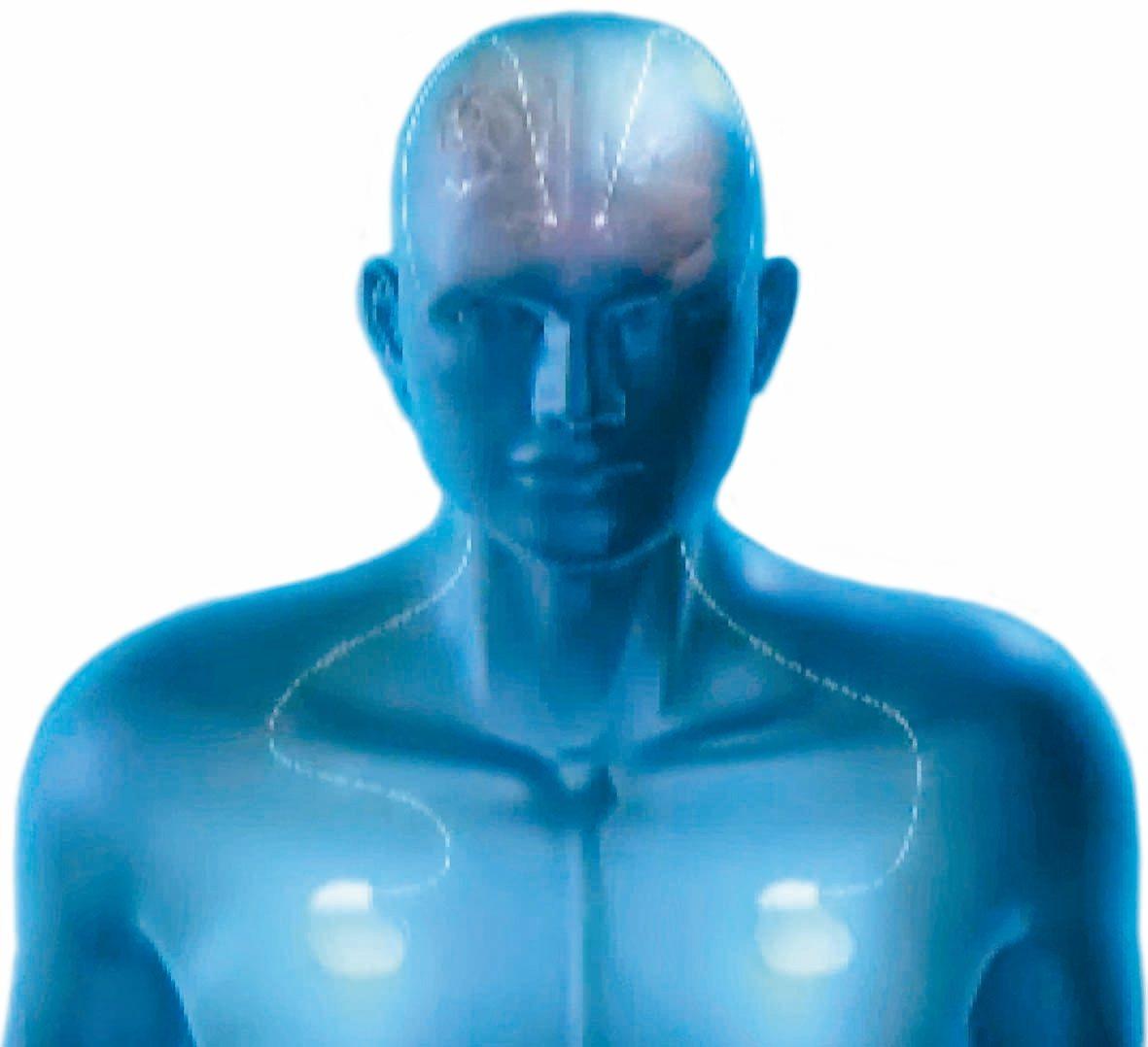 植入腦部的電極晶片,以電線連接植入前胸皮下組織的刺激器,可刺激不同位置,改善不同...