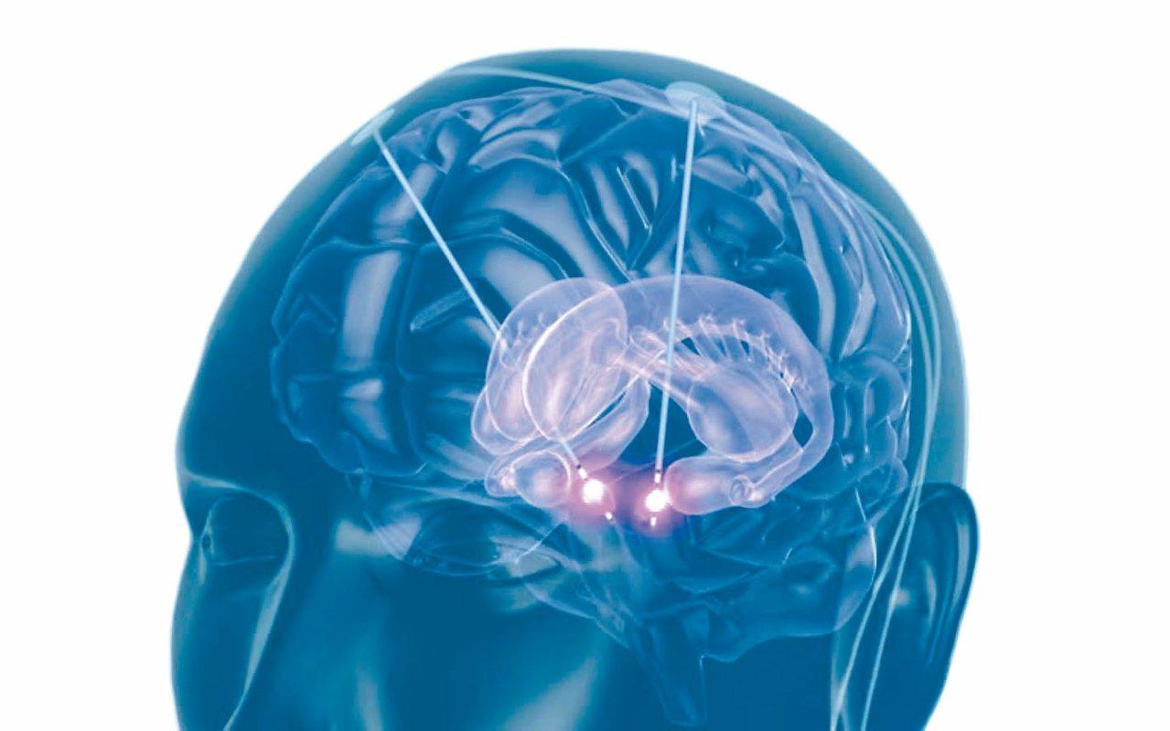 深部腦部刺激手術將電極晶片植入預定的腦部區域,透過電線連接到刺激器。 圖/陳新源...