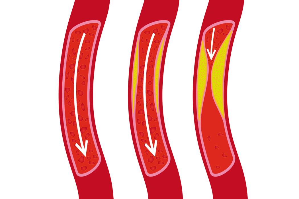 血管示意圖。 圖/ingimage