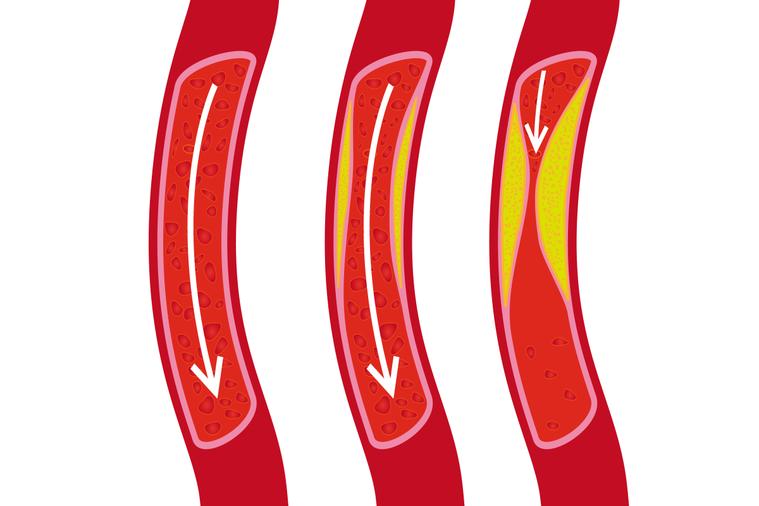 醫界多認為膽固醇與心血管疾病有相關性。 圖/ingimage