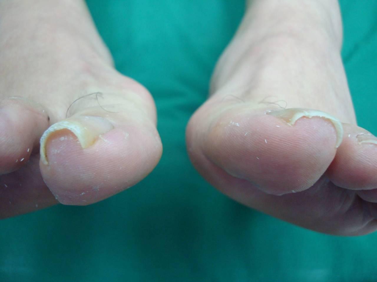 51歲的陳姓男子,因雙腳拇指指甲常常長在肉裡面,導致發炎而形成甲溝炎,走起路來一...