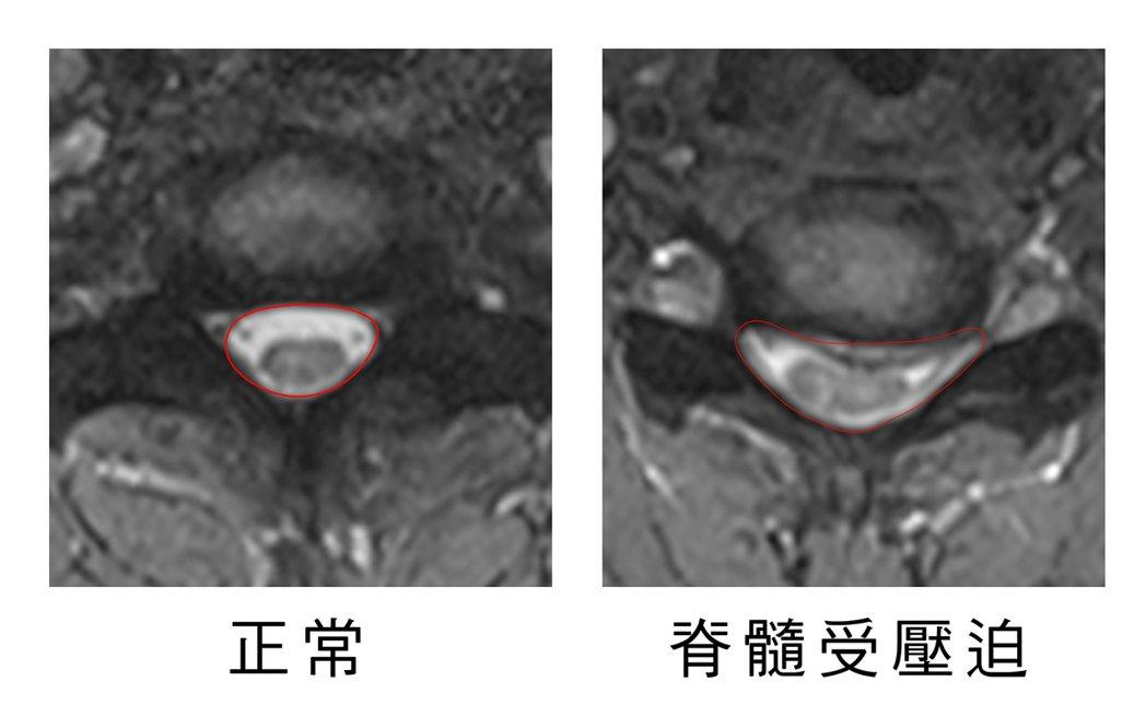 光田醫院外科部副部長林牧熹,說明患者頸椎突出位置。圖/光田醫院提供