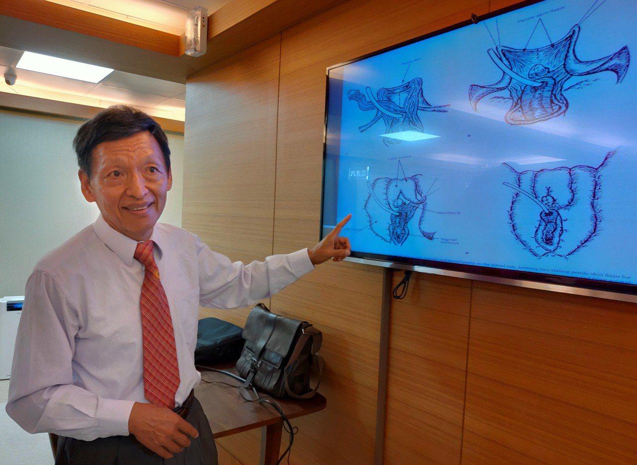 高雄市立聯合醫院整形外科特約主治醫師陳錦時,曾為原發性變性慾患者動過30多例手術...