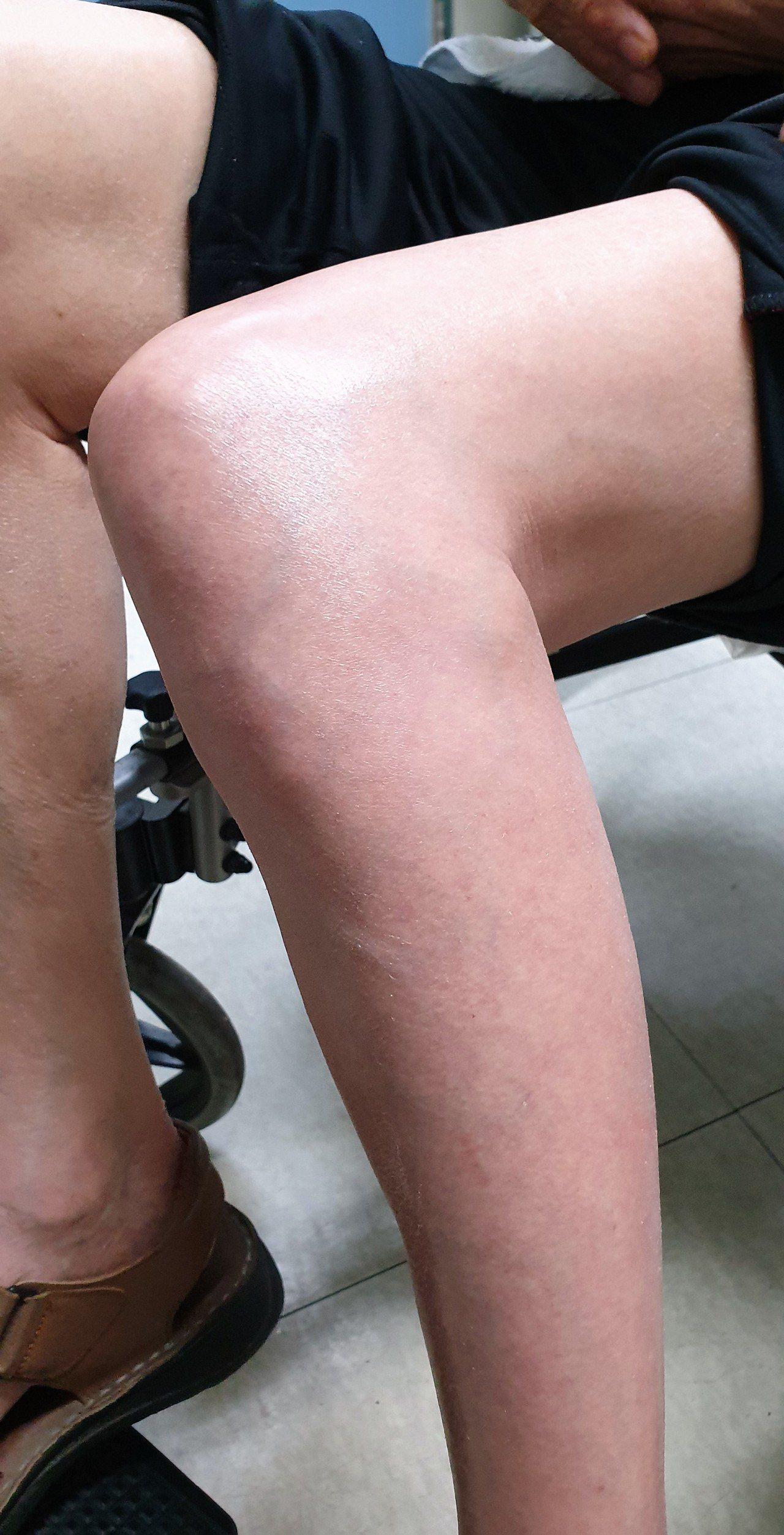 陳姓老翁的左腿無故紅腫,經過超音波診斷才發現是下肢靜脈血栓。圖/衛福部彰化醫院提...
