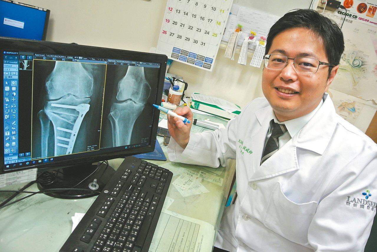 聯新國際醫院外科部副部長、骨科主任侯咸仰表示,「保膝」手術保留患者原來的膝蓋。 ...