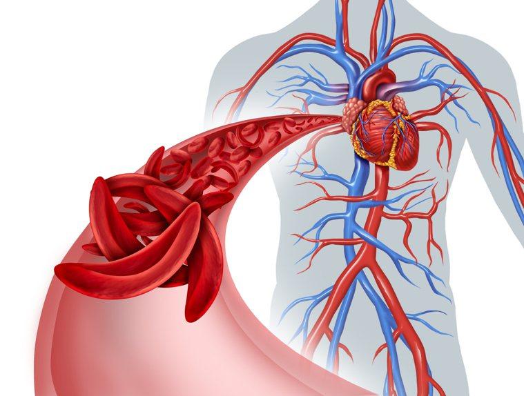 血栓示意圖。ingimage