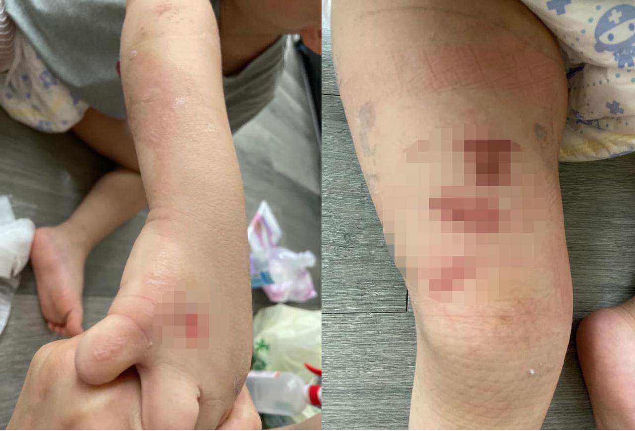 李姓網友的3歲兒子手腳有多處燙傷痕跡。圖擷自臉書社團「爆怨公社」