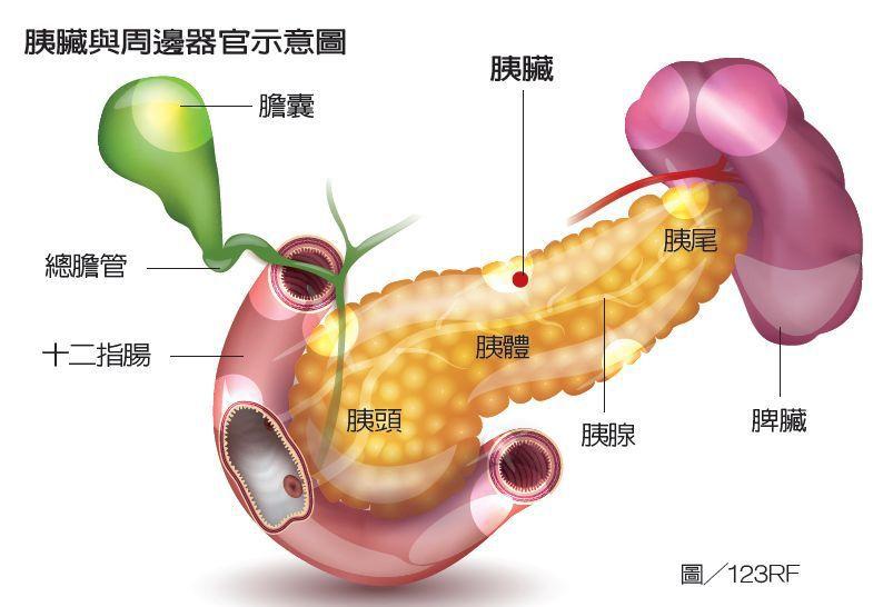 胰臟深藏在胃的後方,不易檢查,且初期症狀不明,常被忽略。