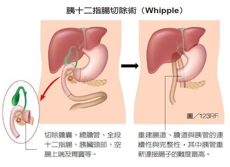 「胰頭十二指腸切除術」就是醫界所謂的Whipple operation,切除範圍...