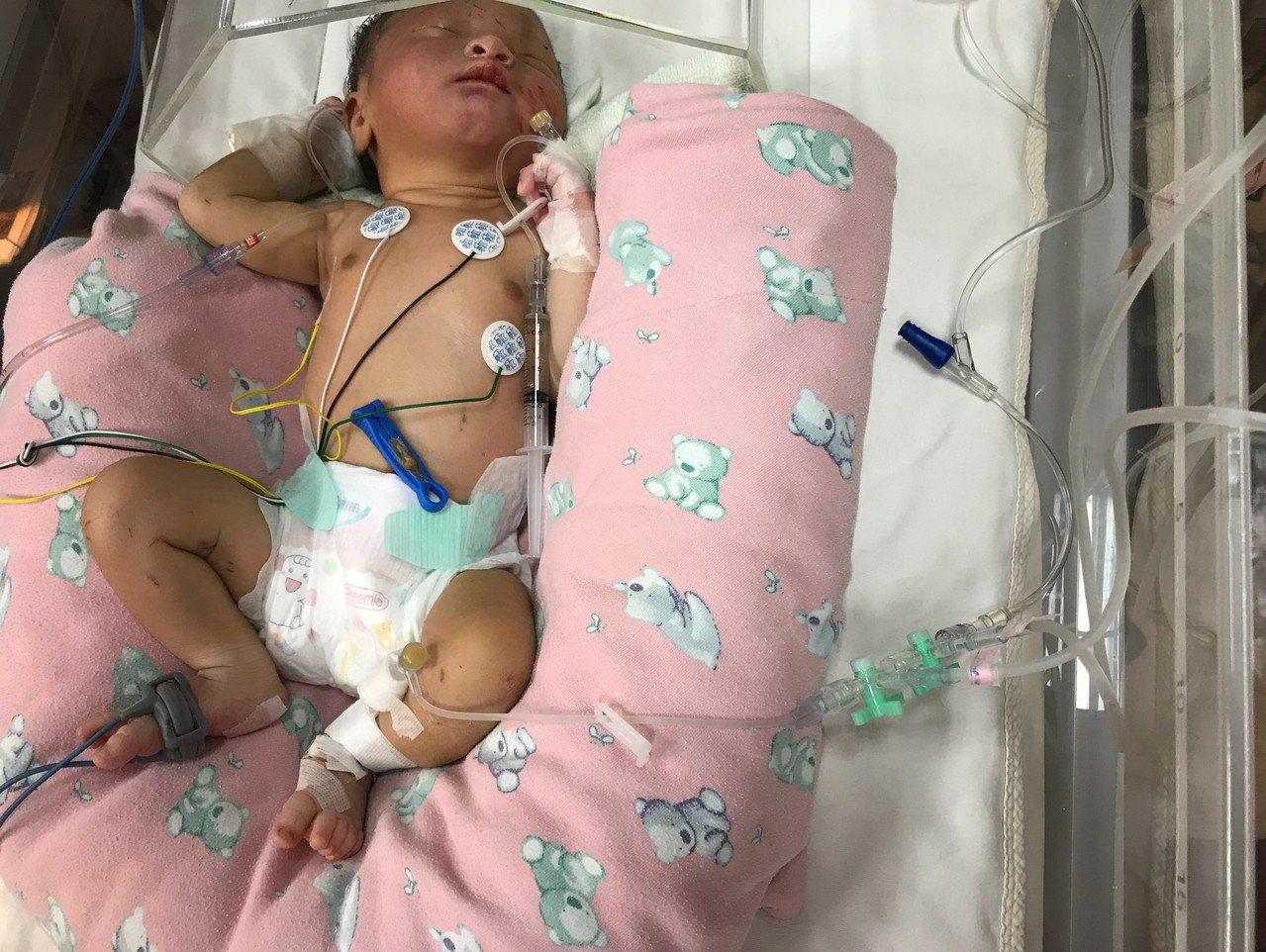 疑似國日慶出生的女嬰遭雙親遺棄在大樹荔枝園附近,目前人仍在加護病房觀察。圖/義大...