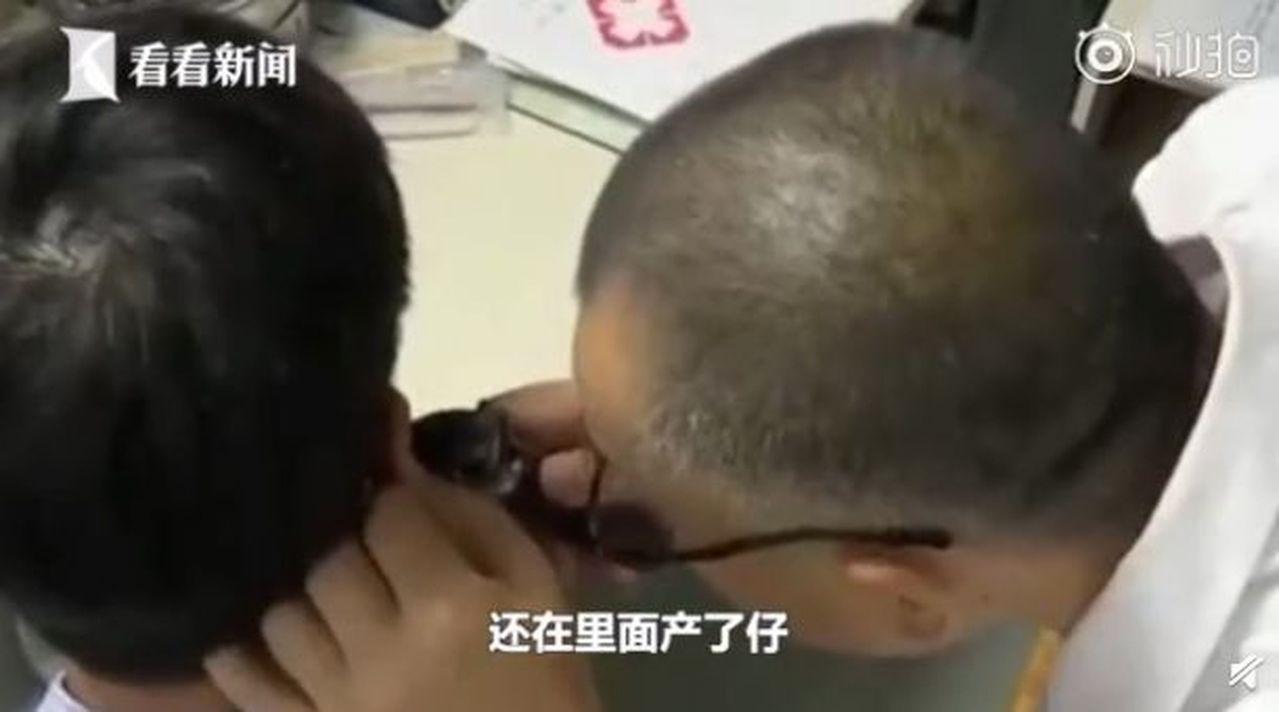 廣東惠州一名男子右耳痛癢不止,醫生用耳內鏡檢查,竟發現大大小小十幾隻蟑螂。 圖/...