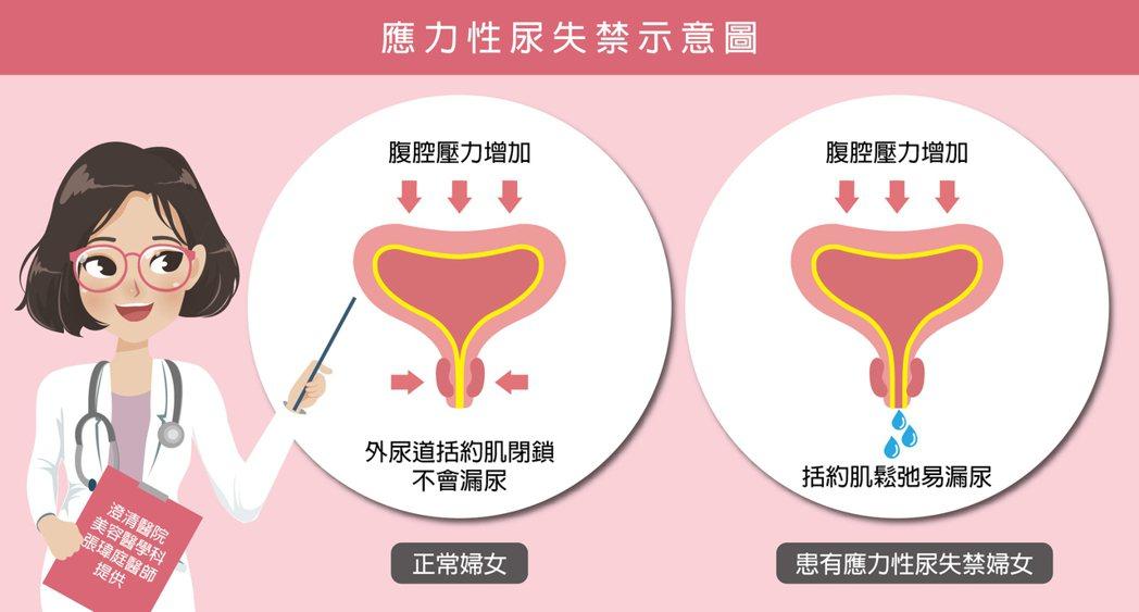 醫師張瑋庭建議,有漏尿問題的女性,先到醫院就診評估嚴重度再後續進行適當治療,避免...