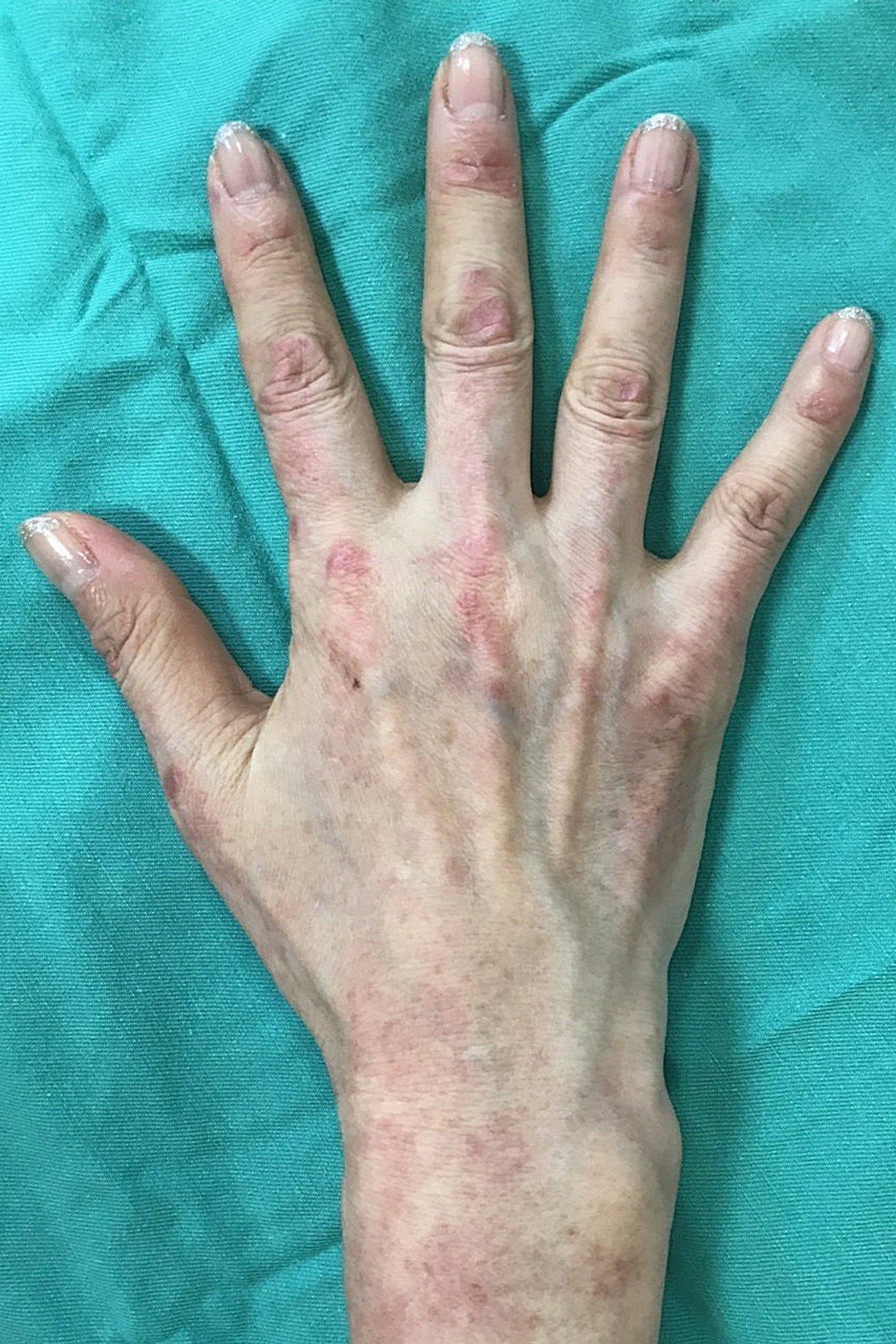 陳志斌提醒,皮肌炎時常被誤診成濕疹、脂漏性皮膚炎或酒糟性皮膚炎,若身上出現不痛不...