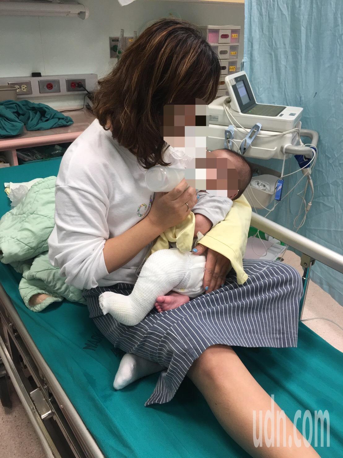 陳姓男嬰左腳遭燙傷。記者蕭雅娟/攝影