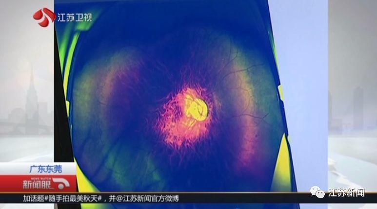 少年的眼球結構已嚴重變形,甚至膨脹的像顆氣球。圖擷自中國新聞社