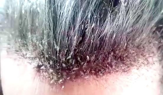 頭蝨是常見的感染疾病,從蟲卵孵化成蟲,大約7到10天,常見傳染途徑為共用梳子、枕...