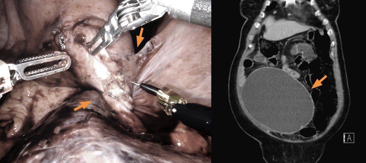 左圖婦人左邊輸卵管發生扭轉情形,若不及時就醫器官可能會壞死;右圖為巨大卵巢囊腫超...