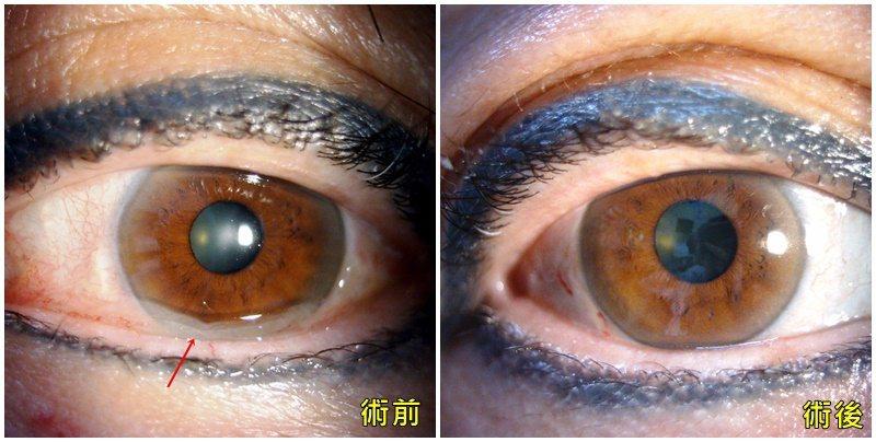 一名55歲女性近年來飽受眼睛乾澀所擾,眼球經常出現紅血絲,眼角甚至還出現果凍般的...