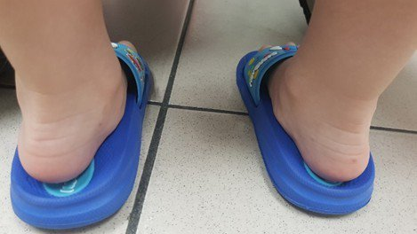 典型柔韌性扁平足,站立時足跟向外傾斜,足跟塌陷。圖/台大新竹分院提供