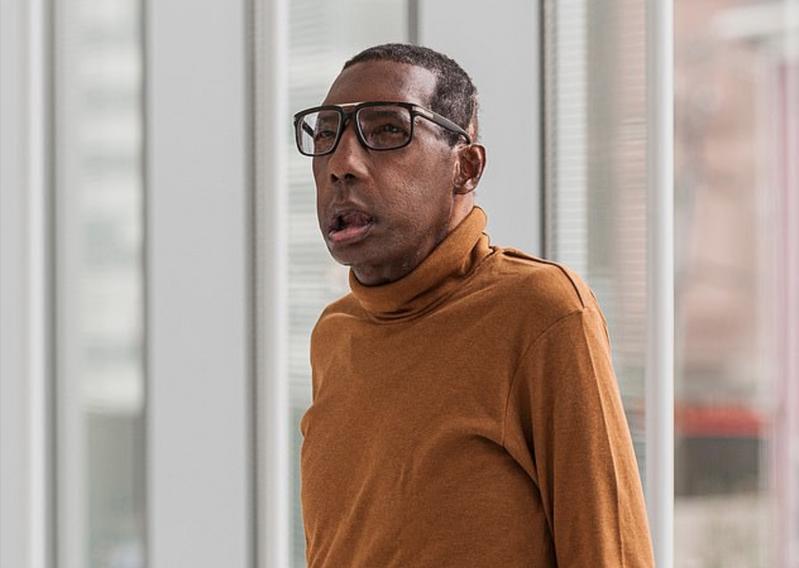羅伯特(Robert Chelsea)成功移植臉部,成為首位接受「臉部移植」的非裔美人。圖擷自Daily news
