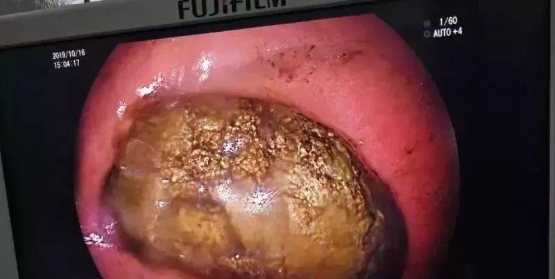 吃太多柿子在胃裡形成鵝蛋般的結石。圖取自福州晚報