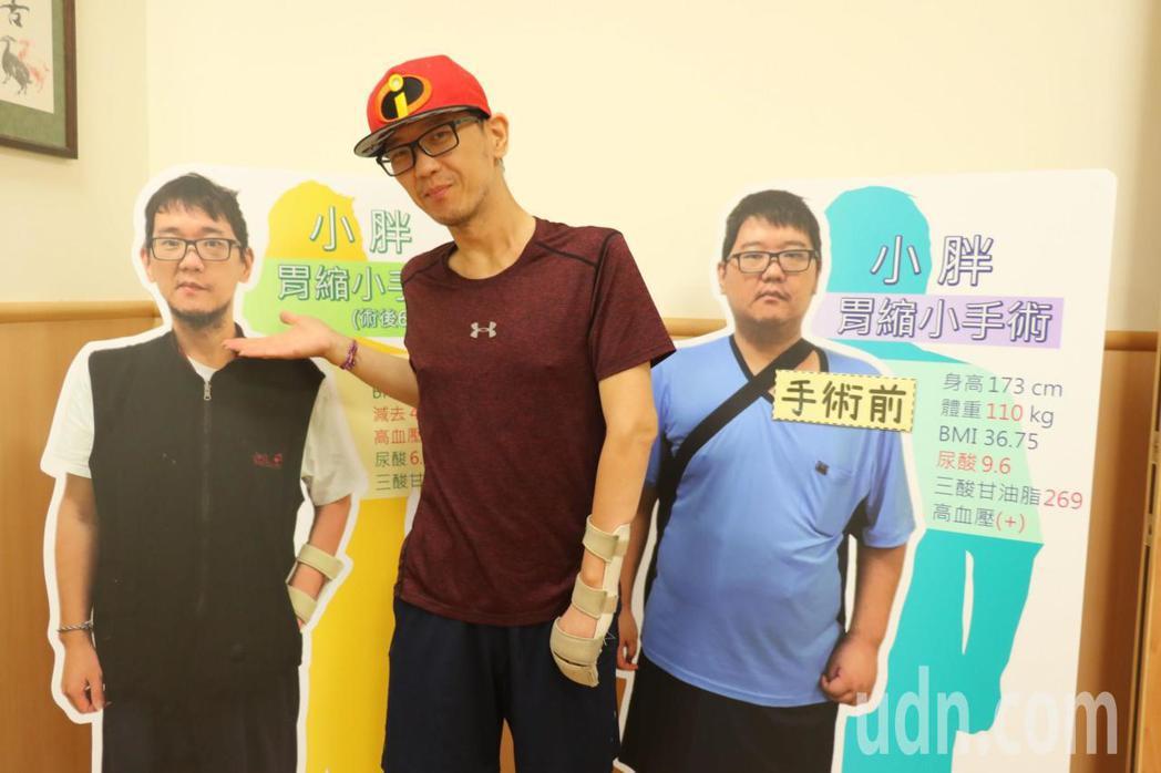 體重110公斤的林先生接受「胃袖狀切除」減重手術後,6個月瘦了46公斤,BMI也...