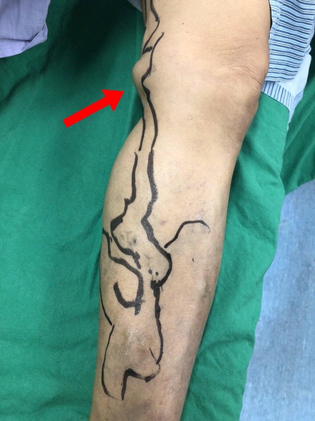 婦人腿長雞蛋般的血管瘤,醫師以微創無痛手術治療。圖/童綜合醫院提供