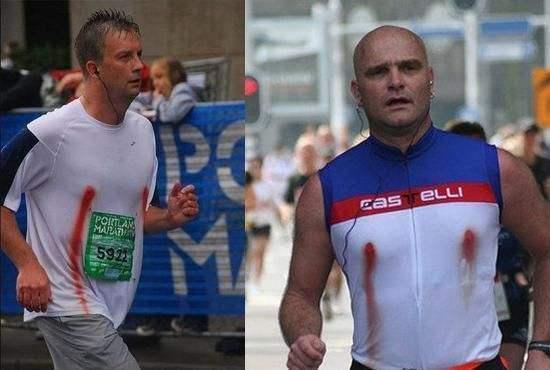 男性跑者跑馬拉松,乳頭摩擦出血。