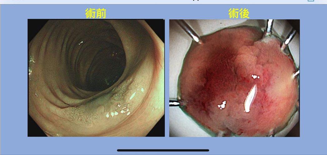中國醫藥大學新竹附設醫院消化科醫師范峻維,根據多年內視鏡診斷消化道早期癌的經驗,...