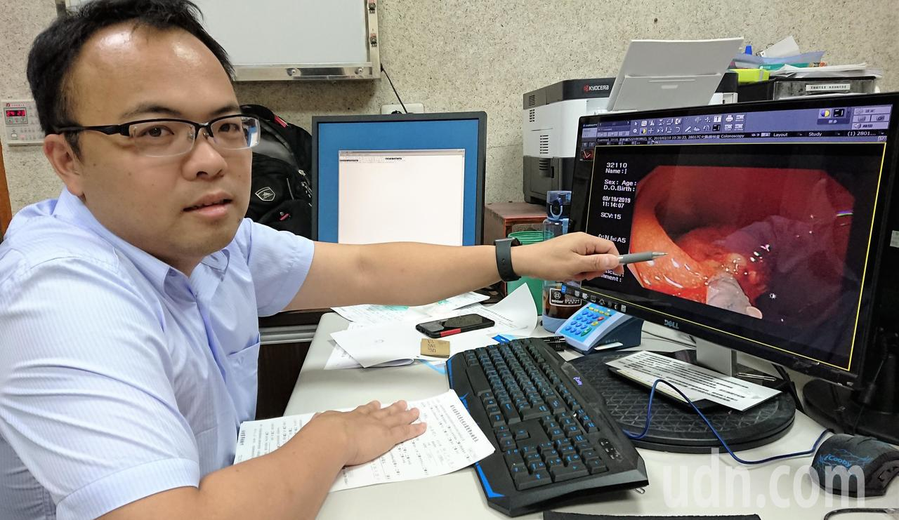 惠來醫療社團法人宏仁醫院胃腸肝膽科醫師江明師,解說大腸癌的種類和治療方式。記者凌...