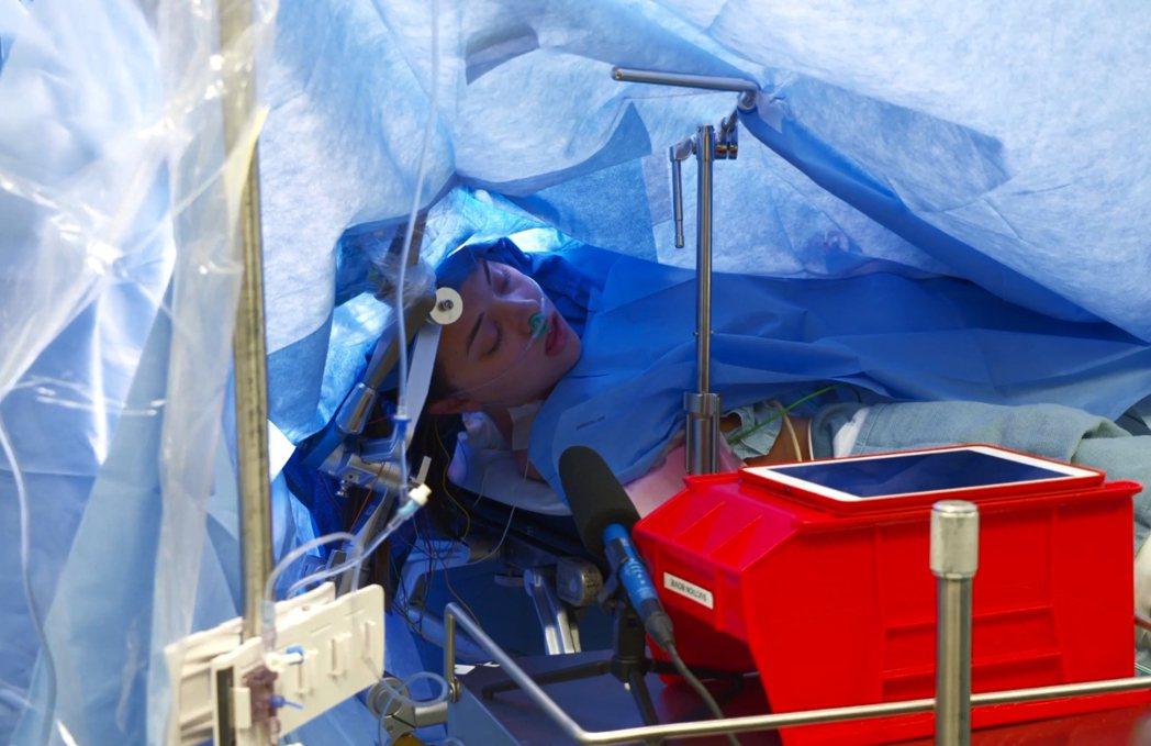 25歲的珍娜進行開腦手術,過程中保持清醒,並且直播讓網友觀看。 圖擷自Metho...