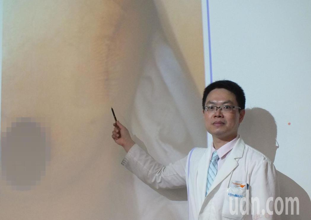 醫師洪志強說明,32歲蔡姓才藝班女老師今年4月在左乳上側摸到跟以前不一樣硬塊,確...