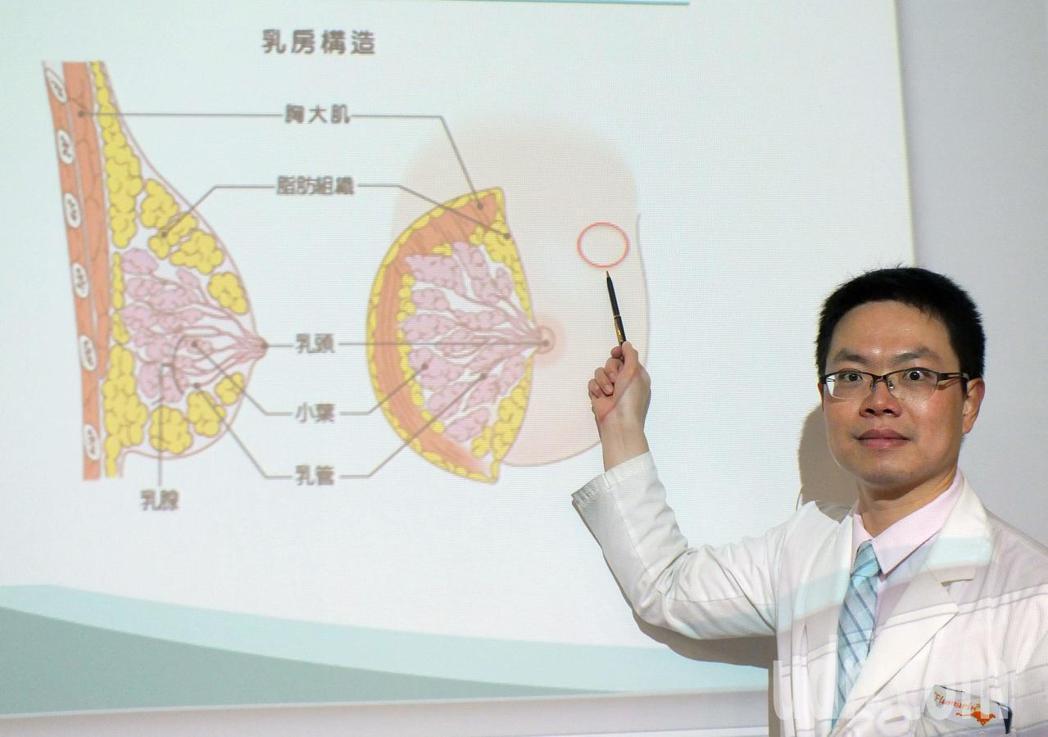 醫師洪志強說明,32歲蔡姓才藝班女老師今年4月在左乳上側摸到跟以前不一樣硬塊(紅...