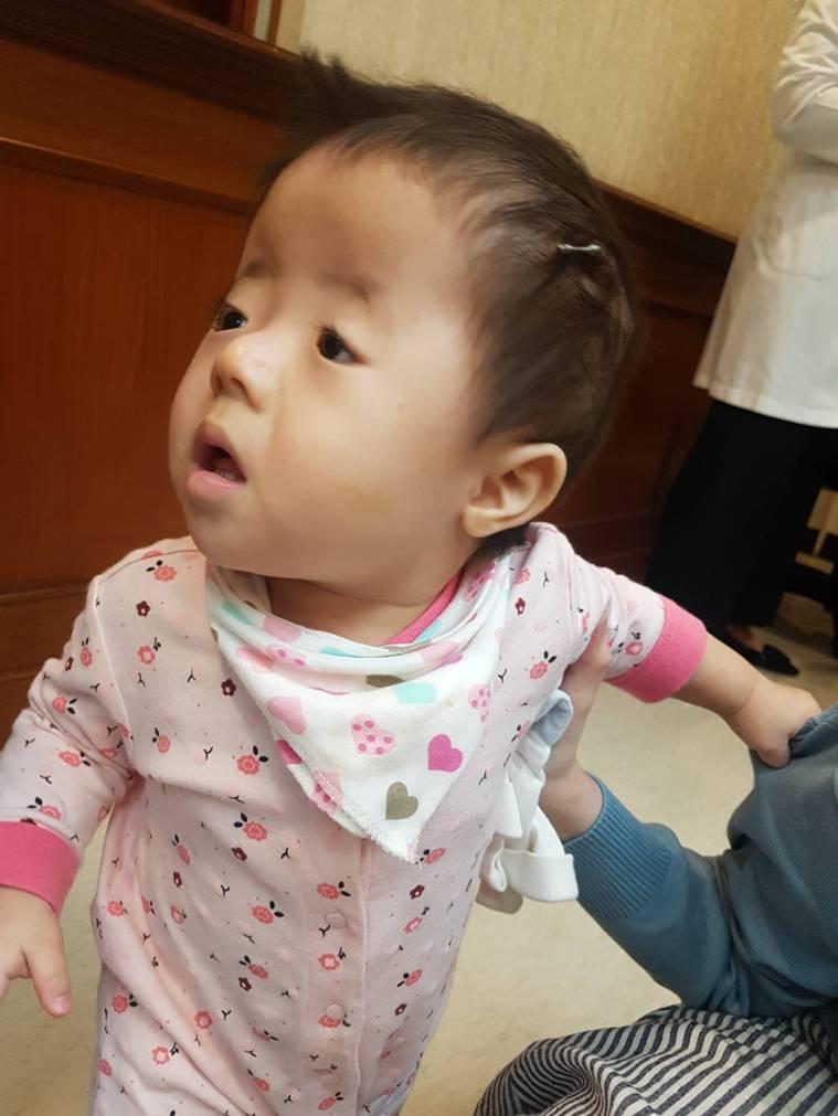 小檸檬在十個月大時接受頭顱擴張牽引手術,媽媽每天要幫她旋轉「螺絲釘」。記者楊雅棠...