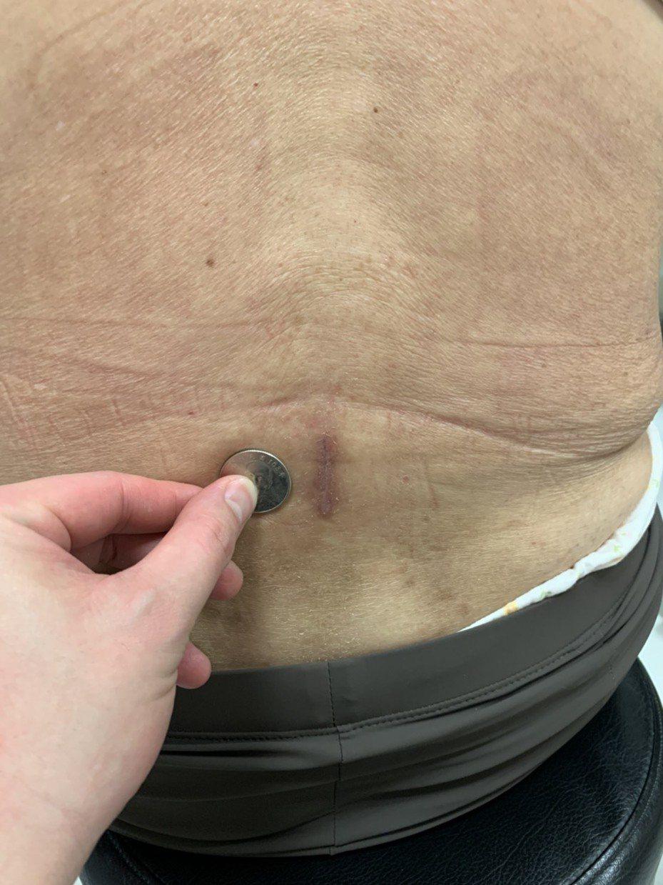 採用「微切傷口脊椎融合手術」,傷口僅約10元硬幣大小,患者術後2到3天內即可出院。圖/中醫大新竹附醫提供