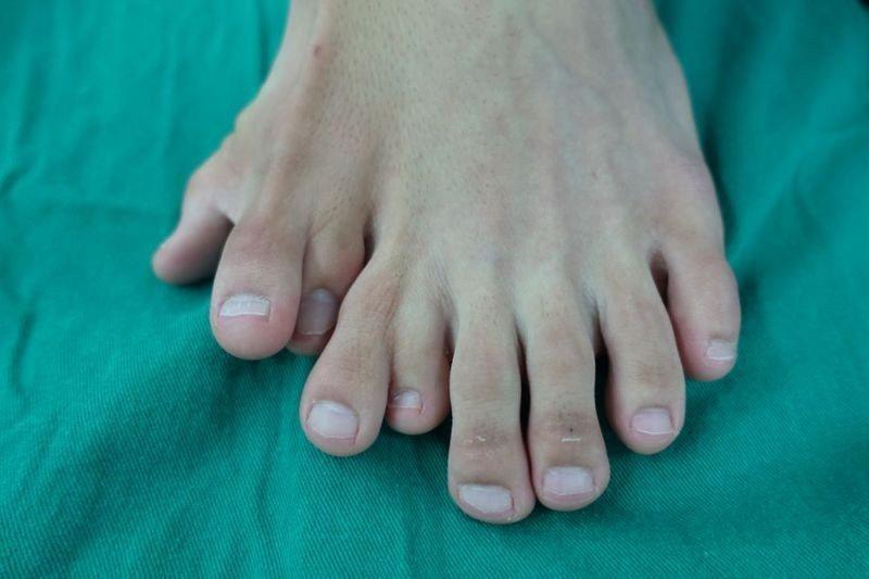 廣東潮汕一名21歲男子左腳從出生起就患有「多趾畸形」,一腳竟有9隻腳趾。圖:取自...