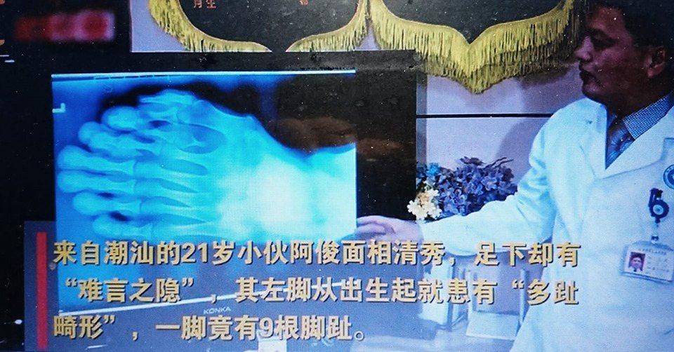 廣東潮汕一名21歲男子左腳從出生起就患有「多趾畸形」,一腳竟有9隻腳趾。圖/視頻...