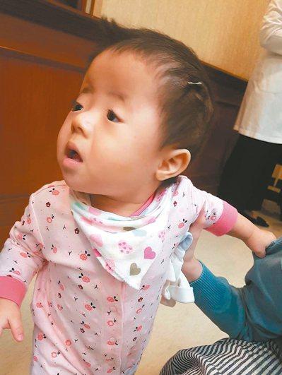 小檸檬在十個月大時接受頭顱擴張牽引手術,媽媽每天要幫她旋轉「螺絲釘」。 記者楊雅...