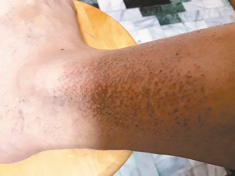 罹患皮膚乾癬,看似無關緊要,若一旦被纏上,卻可能沒完沒了,令人困擾不已。 圖/可...